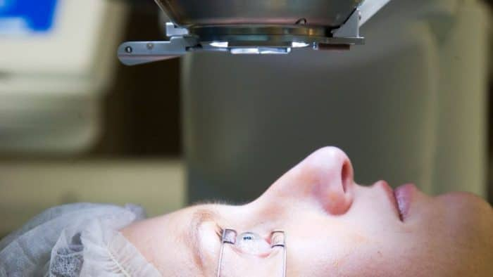Chirurgie oculaire laser